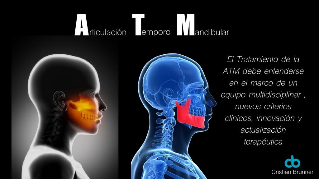 ATM-04
