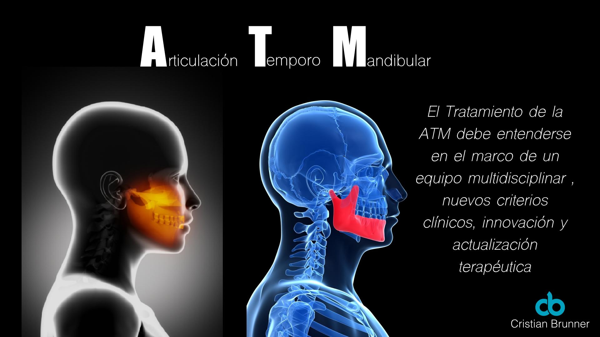 ATM: Articulación Temporomandibular - Cristian Brunner